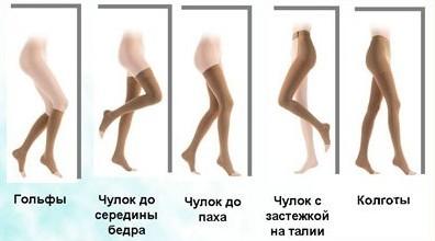 Варикозное расширение вен на ногах клиника и лечение